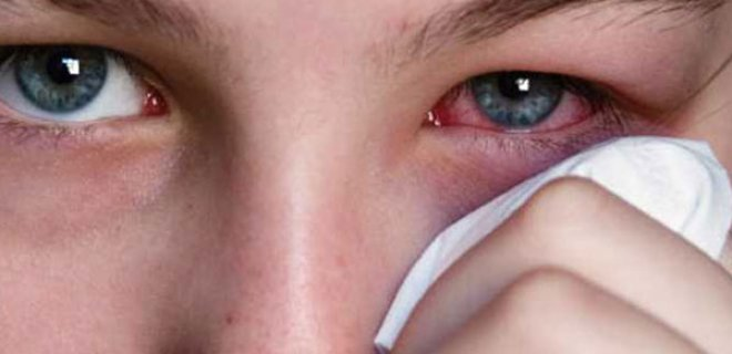 What Are The Symptoms Of A Stye