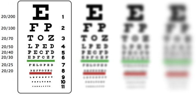 astigmatism-issue.png