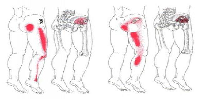 Nerve Entrapment In The Leg