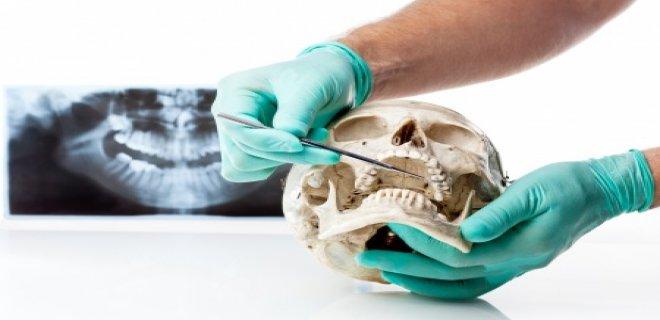 cene eklemi rahatsizligi 002 - TMJ Disorder