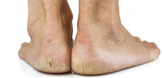 derin topuk catlagi - Causes and heel fissures what is the treatment?