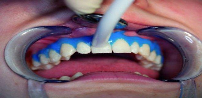 dis beyazlatma (bleaching) 004 - Tooth Whitening (Bleaching)
