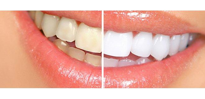 Herbal Teeth Whitening Methods