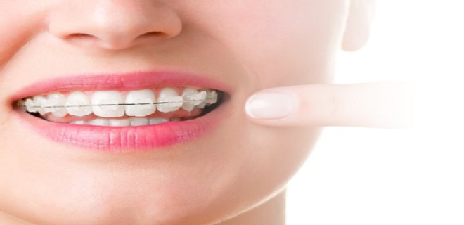 dis teli cesitleri nelerdir 002 - What Are The Types Of Braces?