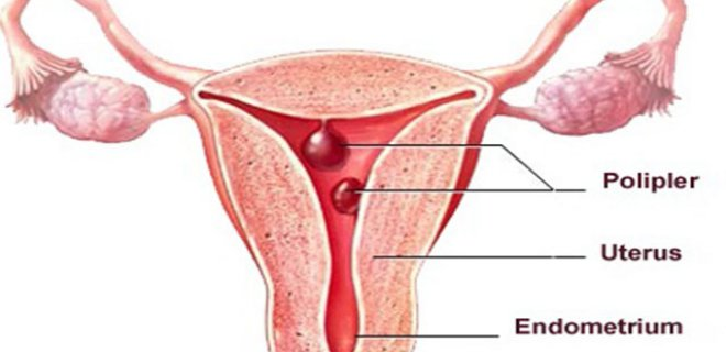 endometrial polip - Methods of diagnosis and treatment of endometrial polyps