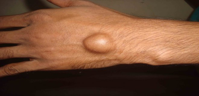 ganglion kisti belirtileri - Ganglion cyst what is it and how is it treated?