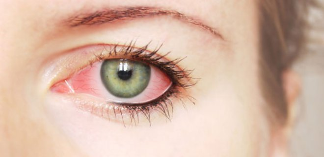 Factors That Cause Dry Eye Syndrome