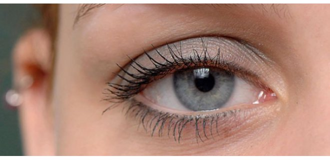 goz kurulugu nedenleri 006 - What Is Dry Eye Syndrome?