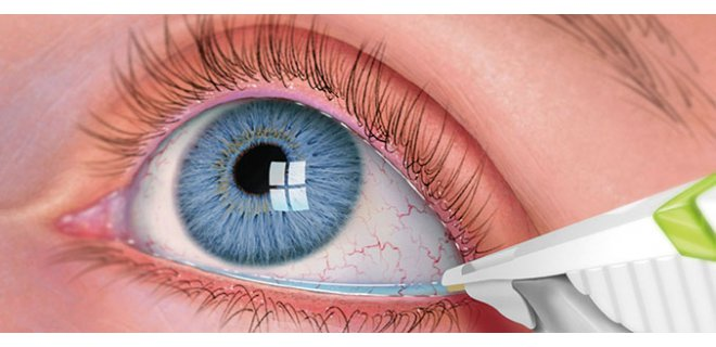 goz kurulugu tedavisi 003 - What Is Dry Eye Syndrome?