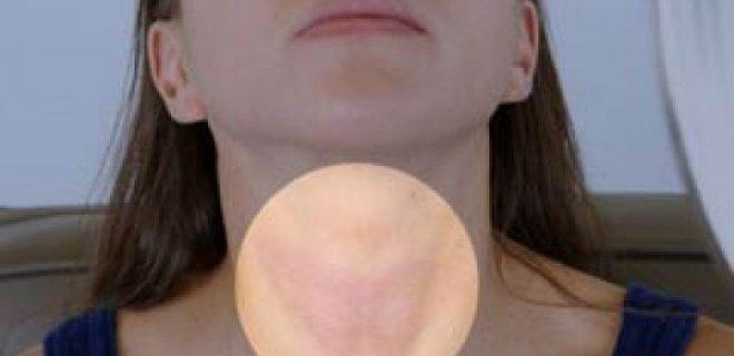 hipertiroidizm teshisi ve tedavi yontemleri 002 - Methods the diagnosis and treatment of hyperthyroidism