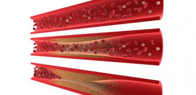 iskemik kalp hastaligi teshisi ve tedavi yontemleri 002 - Methods of diagnosis and treatment of ischemic heart disease