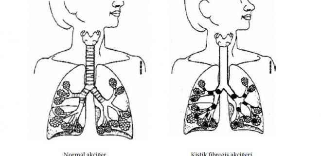 Symptoms Of Cystic Fibrosis