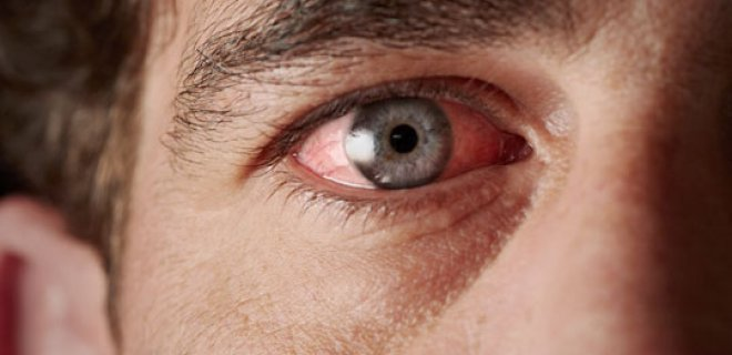 kuru goz sendromu 003 - What Is Dry Eye Syndrome?
