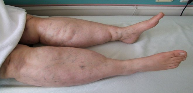 ELEPHANTIASIS (LYMPHEDEMA)