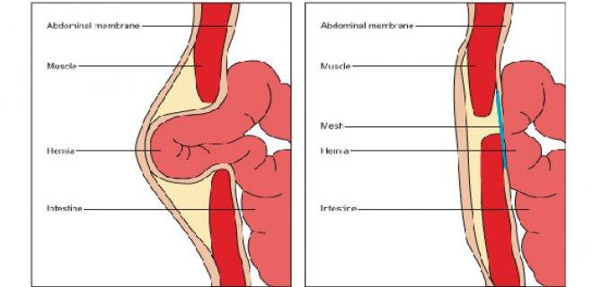 Slip a type of hernia