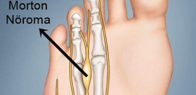 morton noroma - What is Morton's neuroma and how is it treated?