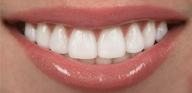 pembe estetik (dis eti estetigi) 003 - Aesthetic Pink (Gum Surgery)