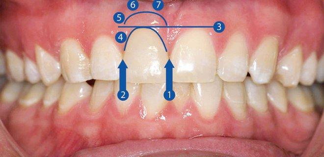 pembe estetik (dis eti estetigi) - Aesthetic Pink (Gum Surgery)