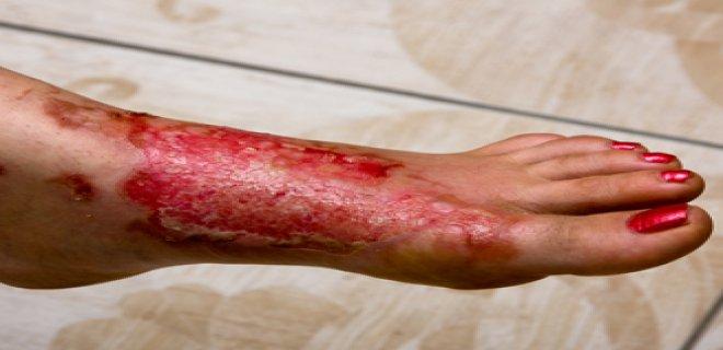 pemphigus is a disease.png
