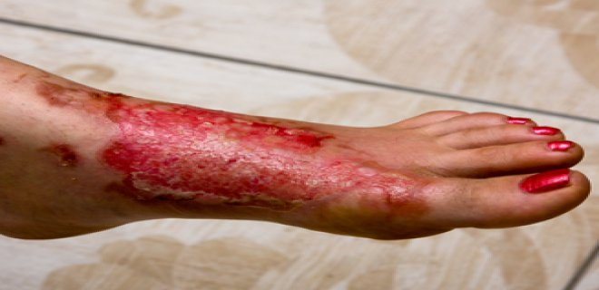 pemfigus hastaligi - Symptoms and treatment of disease pemphigus