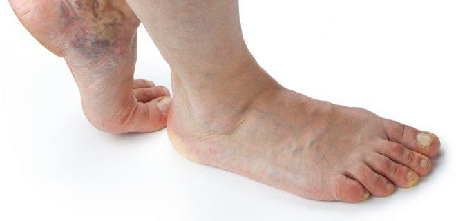 WHAT CAUSES PERIPHERAL VASCULAR DISEASE