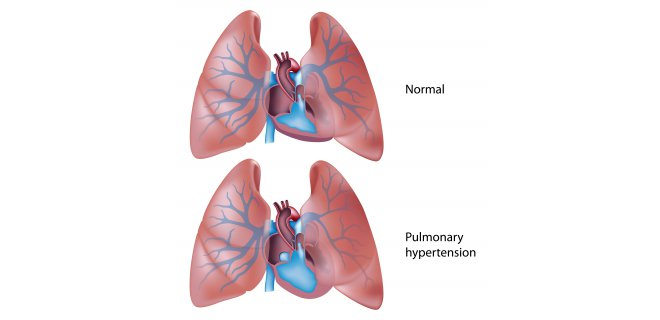 pulmoner hipertansiyon - What is pulmonary hypertension and how is it treated?