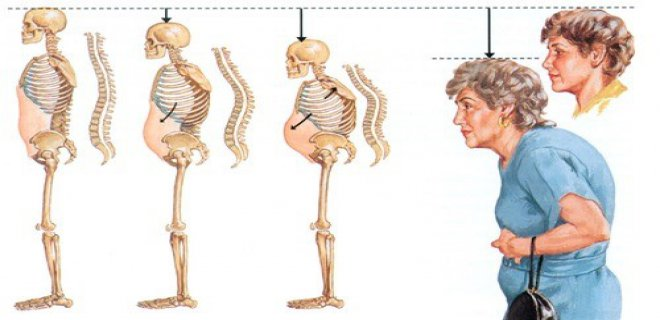 Resistant rickets and osteomalacia diagnosed with