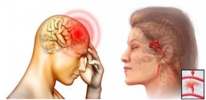 THE CAUSES OF CEREBRAL VASCULAR DISEASES