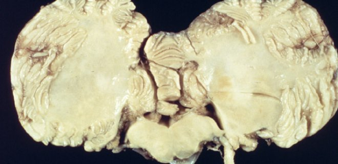 Subacute Sclerosing Panencephalitis