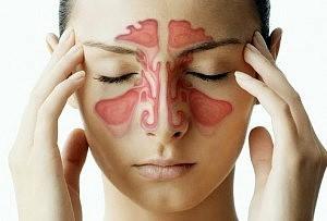 sinus-headaches_0-300x203