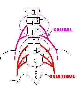 On entend fréquemment parler de sciatique, ce qui n'est pourtant pas le cas pour la cruralgie. Le nerf sciatique est formé de la réunion des deux dernières racines nerveuses lombaires tandis que le nerf crural est la réunion des deux racines au-dessus.
