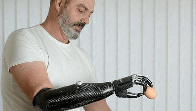 Lengan bionic