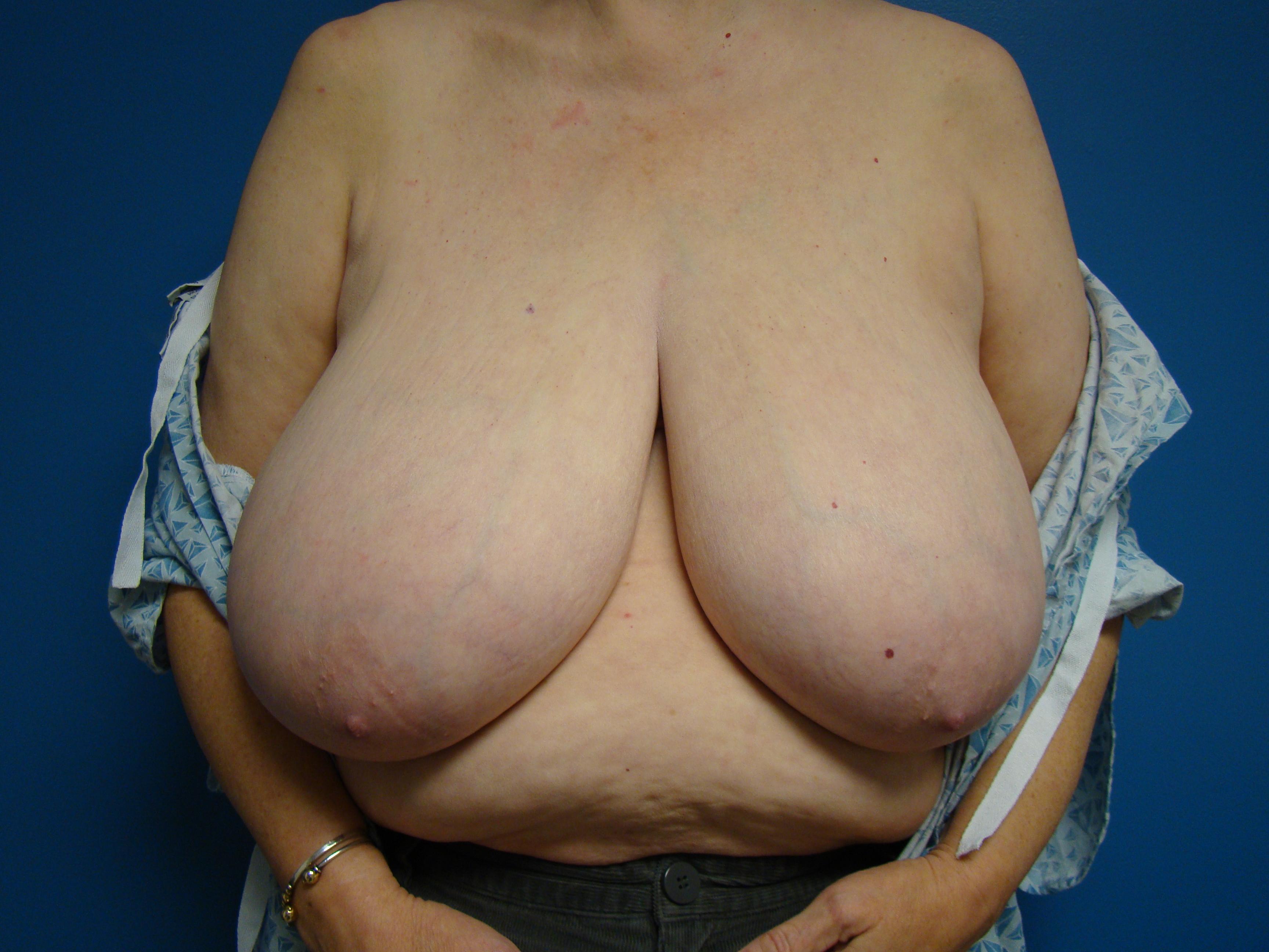 macromastia gigantomastia big tits datawav