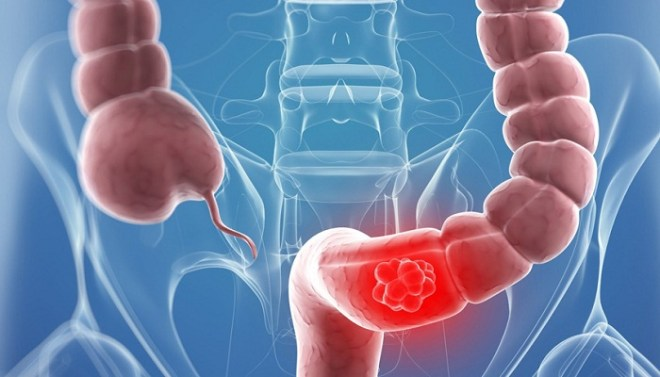 colon-cancer-screening-Netmarkers