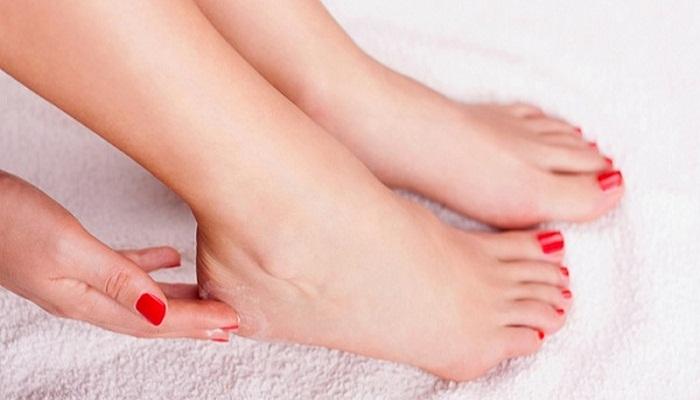 treat cracked heels-Netmarkers