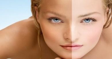 how-to-remove-sun-tan-naturally-Netmarkers
