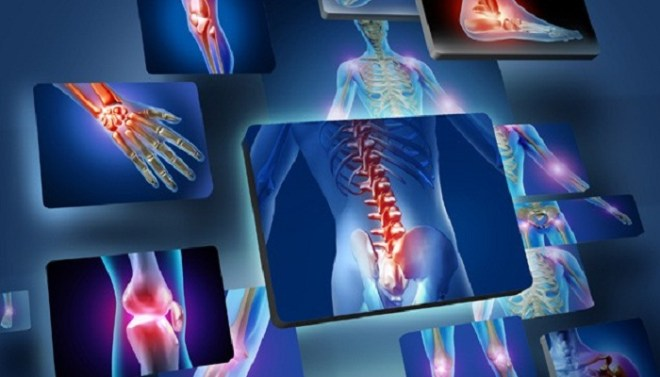 joint pain-Netmarkers