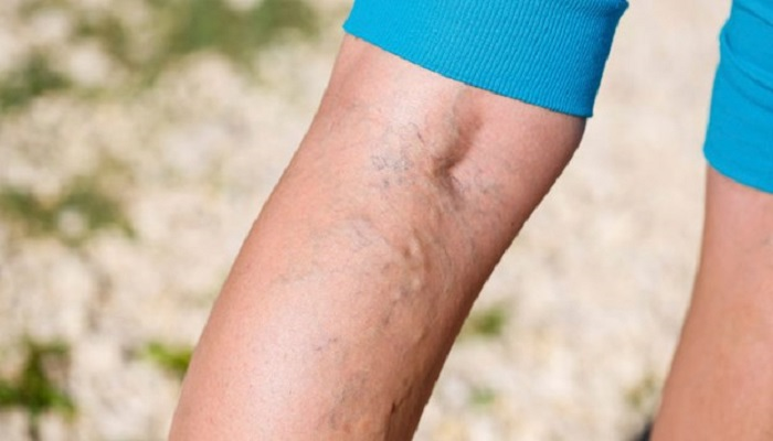 varicose-veins-Netmarkers
