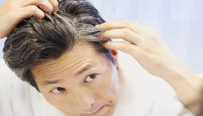 Ayurvedic Home Remedies To Turn White Hair into Black-netmarkers