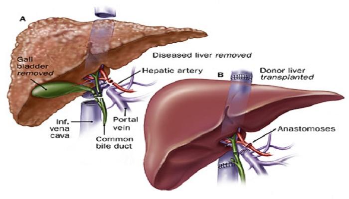 Liver Transplant- Netmarkers