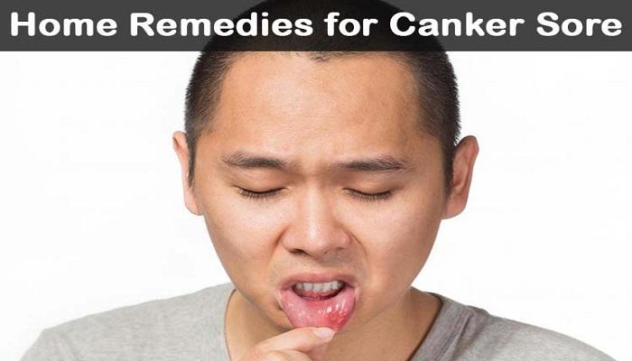 canker-sore-remedies-netmarkers