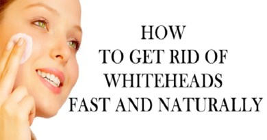 how-to-get-rid-of-whiteheads-netmarkers