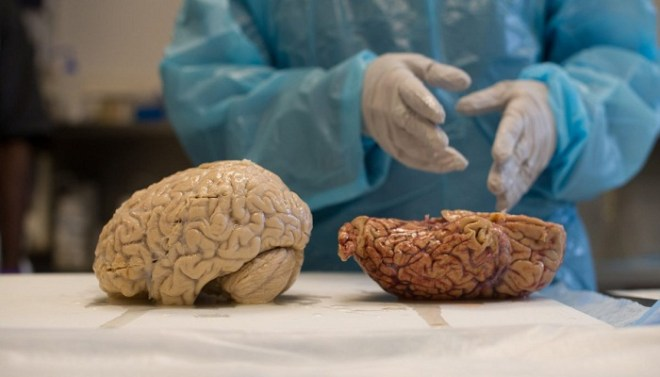 Scientist-research-on-brains-of-clinically-dead-people-Netmarkers