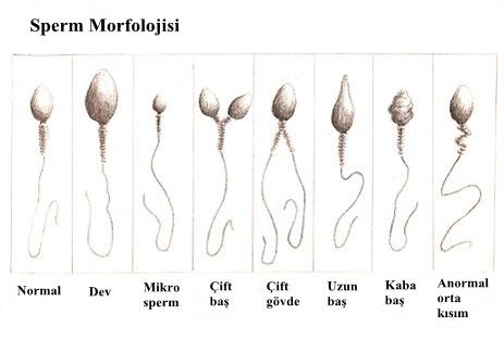 """""""sperm"""" ile ilgili görsel sonucu"""