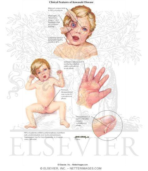 Clinical Features of Kawasaki Disease