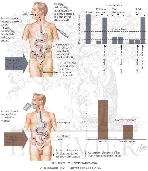 shilling test / vitamin b12 absorption test | the medical post, Skeleton