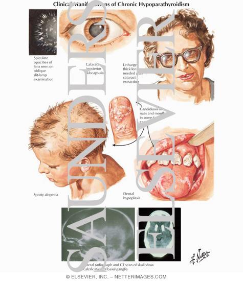 Clinical Manifestations of Chronic Hypoparathyroidism
