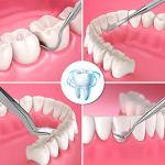 6 Outils Dentaires Par Set Sonde En Acier Inoxydable Détartreur À Crochet Pince Miroir Kit De Nettoyage Des Dents Avec Étui