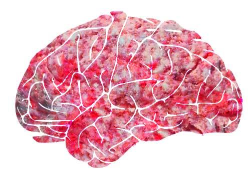 Gehirnblutung
