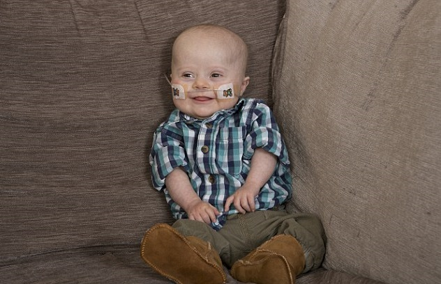 william jones bebe operation coeur ouvert trisomie 21 3